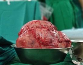 Khối u to như quả bóng đẩy tim bệnh nhân sang ngực phải