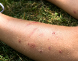 Tại sao người này bị muỗi cắn nhiều hơn người kia?