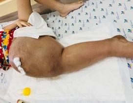 Cảnh giác với biểu hiện đau mỏi chân tay kéo dài ở trẻ