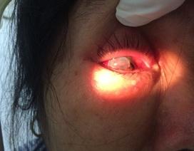 Người phụ nữ bị chồng bạo hành vỡ nhãn cầu mắt đã được ghép giác mạc