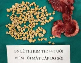 Túi mật hoại tử vì chứa gần 250 viên sỏi