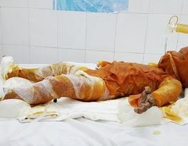 3 chị em đốt rác gây cháy nhà, một bé gái bị bỏng nặng