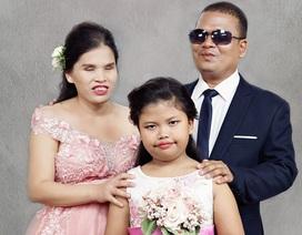 Bộ ảnh cưới của 15 cặp đôi khuyết tật khiến người xem rơi lệ