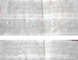 Virus siêu nhỏ nhưng gây viêm cơ tim cấp nguy hiểm