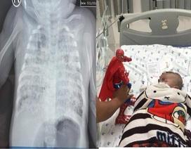 Bé 2 tháng tuổi phổi trắng xóa vì nhiễm lao từ cha