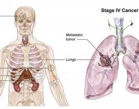 Ho lâu ngày không khỏi, đi khám mới phát hiện ung thư phổi