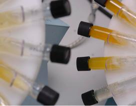 Xét nghiệm nước tiểu đơn giản phát hiện ung thư buồng trứng