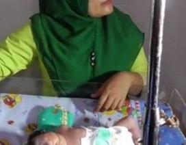 Bố mẹ sốc khi thấy con chào đời chỉ có một mắt giữa trán