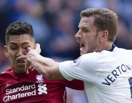 Ngôi sao Liverpool bị chọc mắt kinh dị ở trận gặp Tottenham