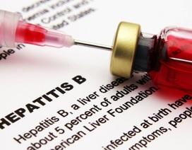 Đọc ngay nếu bạn chưa biết bị viêm gan B cần làm xét nghiệm gì