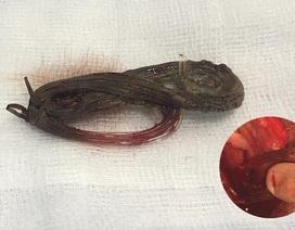 Dương vật lở loét vì cuộn cước 11 năm trong niệu đạo