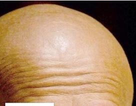 Phương pháp chữa trị bệnh hói đầu