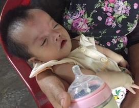 Xót xa bé gái 11 tháng tuổi bị 5 căn bệnh đày đọa