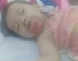 Bé gái 18 tháng tuổi bị bỏng nặng ở nhà trẻ