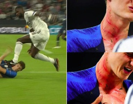 Kinh hãi với pha giẫm lên cổ đối thủ của tuyển thủ Đức