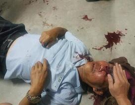 Người đàn ông 68 tuổi bị bảo vệ chung cư đánh bầm dập vì đậu xe sai