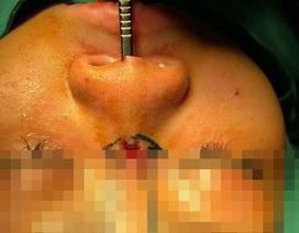 Đi nâng mũi, thiếu nữ bị sụn silicon đâm lòi sống mũi