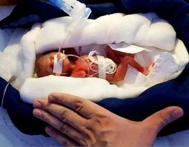 """Sinh non ở tuần thai thứ 28, bé gái """"một gang tay"""" vẫn sống sót thần kỳ"""