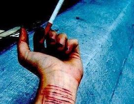 """Thời kỳ """"giông bão và stress"""": Giới trẻ rạch tay, hủy hoại bản thân"""