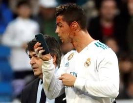 Chảy máu đầm đìa, C.Ronaldo mượn điện thoại kiểm tra vết thương