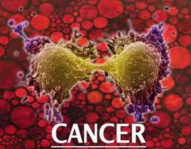 Rượu làm tổn hại chuỗi phân tử DNA, dẫn đến bệnh ung thư