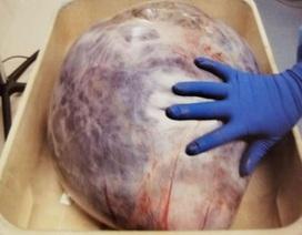 Choáng váng với khối u 22 kg lấy ra từ cơ thể bệnh nhân lạc nội mạc tử cung