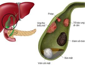 Polyp túi mật: Hiểu để điều trị đúng cách