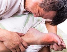 Bệnh gút thường đau ở đâu? Biểu hiện như thế nào?