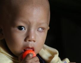 Bé trai chưa tròn một tuổi có nguy cơ mù cả hai mắt vì ung thư