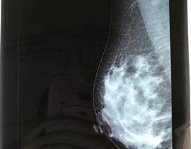 Thực hư thông tin nâng ngực gây ung thư