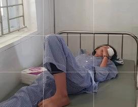 Nổ bình thí nghiệm, nữ sinh bị chấn thương mắt nặng