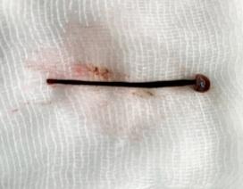 Gắp con đỉa dài 4cm trong mũi bệnh nhân