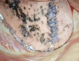 Bác sĩ cũng phát sợ với lá phổi đen sạm của bệnh nhân hút thuốc lá 30 năm