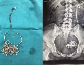 Bị đau bụng cô gái 25 tuổi mới phát hiện biến chứng gãy ống đặt niệu quản suốt 5 năm