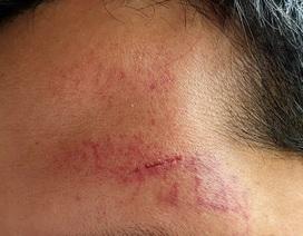 Hà Nội: Điều tra vụ phóng viên Tạp chí Thương trường bị hành hung