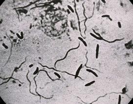 """Vi khuẩn có thể tự rơi vào trạng thái như """"xác sống"""" để sinh tồn"""