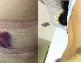 Lùm xùm vụ chuyên viên Sở GD-ĐT bị tố hành hung gây thương tích cho bạn gái