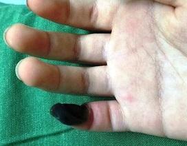 Mua thuốc trên mạng để trị mụn cóc, bé 6 tuổi bị hoại tử ngón tay