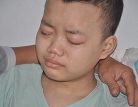 Cậu bé Dương bị ung thư máu đã mãi mãi ra đi