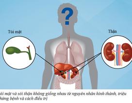 Lật lại những lầm tưởng về bệnh sỏi mật, giúp bài sỏi dễ dàng hơn