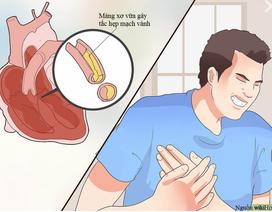 Triệu chứng bệnh mạch vành không phải lúc nào cũng bắt đầu bằng cơn đau thắt ngực