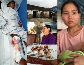 Vợ vừa sinh con, chồng lại bị tai nạn giao thông với nguy cơ cắt cụt một cẳng chân