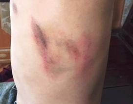 Một học sinh cấp 2 bị phụ huynh hành hung tại trường