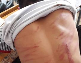 Vụ học sinh lớp 8 bị bố đánh dã man: 79 lằn roi!