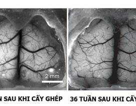 Cấy ghép xương sọ trong suốt cho phép quan sát trực tiếp bộ não đang sống