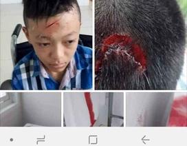 Vĩnh Long: Xác minh thông tin nhà trường bỏ mặc học sinh bị bạn đánh chảy máu