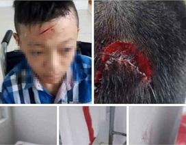 Bạo lực học đường: Phụ huynh thiếu kiểm soát và thấu hiểu con