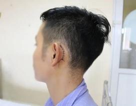 Nam thanh niên thủng màng nhĩ vì điện thoại để cạnh gối phát nổ