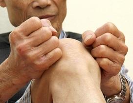 5 triệu chứng tố cáo bạn đã bị bệnh gút mạn tính