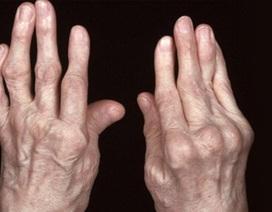 4 hậu quả khôn lường nếu không sớm điều trị viêm đa khớp